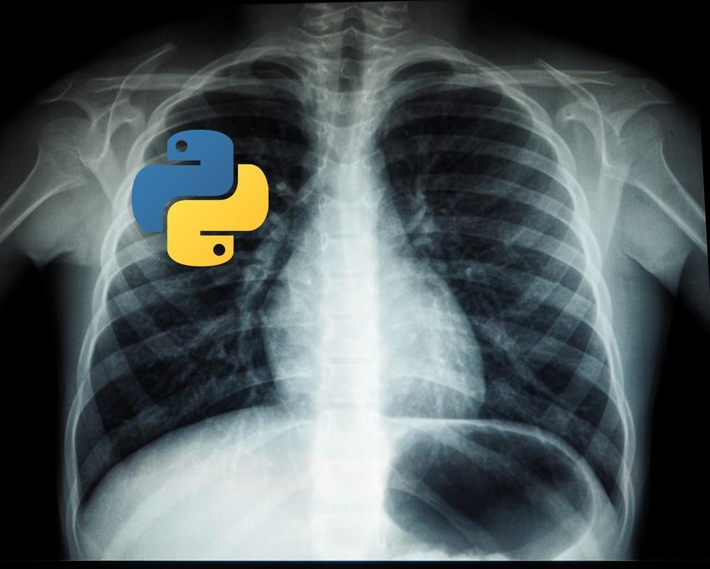 【Python】DICOMファイルを扱うpydicomのインストール